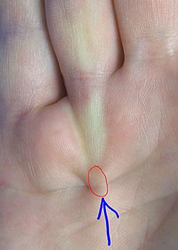 Am finger knubbel Schwellungen und